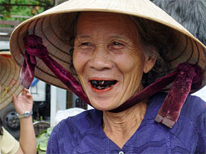 local woman with black teeth